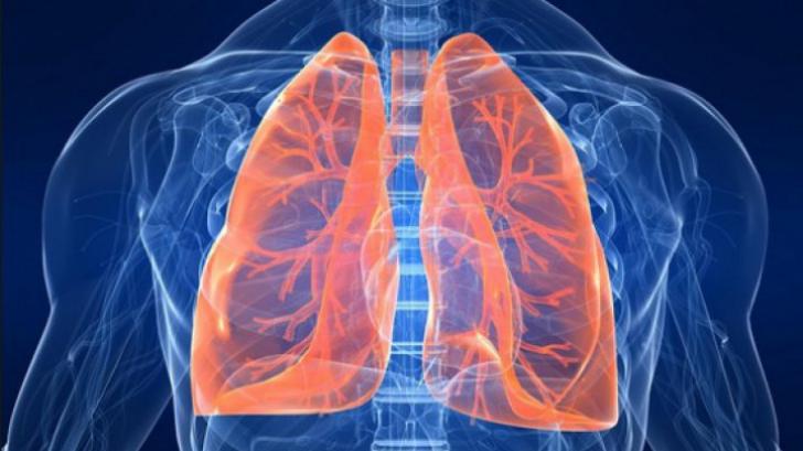 Evolutia si tratamentul cancerului pulmonar