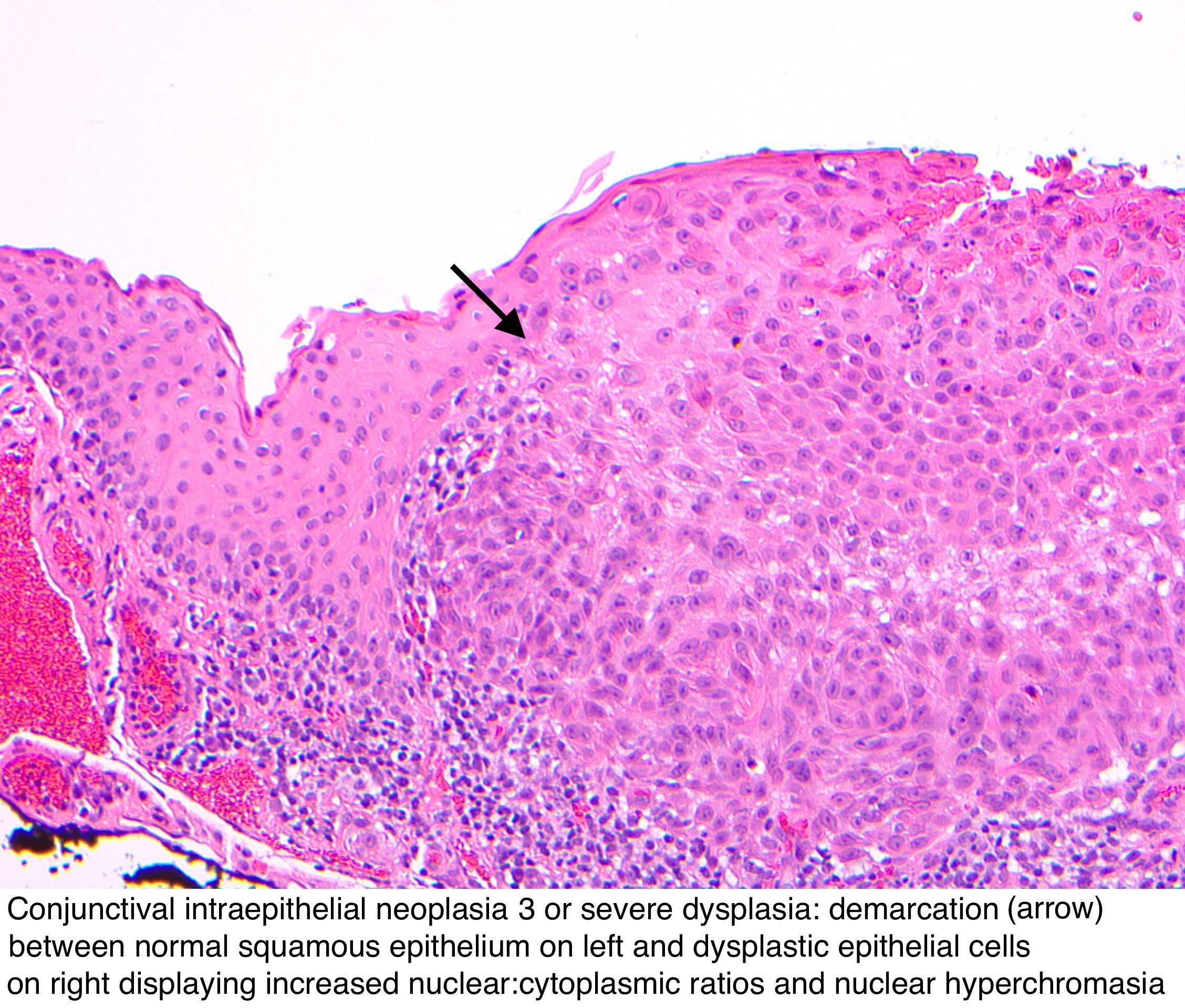 Oftalmologia Nr 4 Din 2013