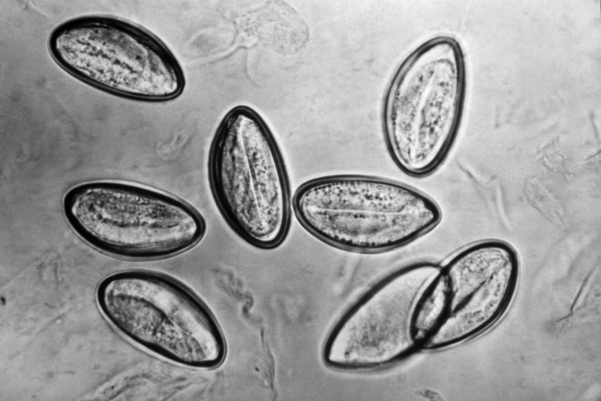 treatment for oxyuris vermicularis