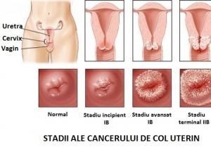 simptome cancer ginecologic)