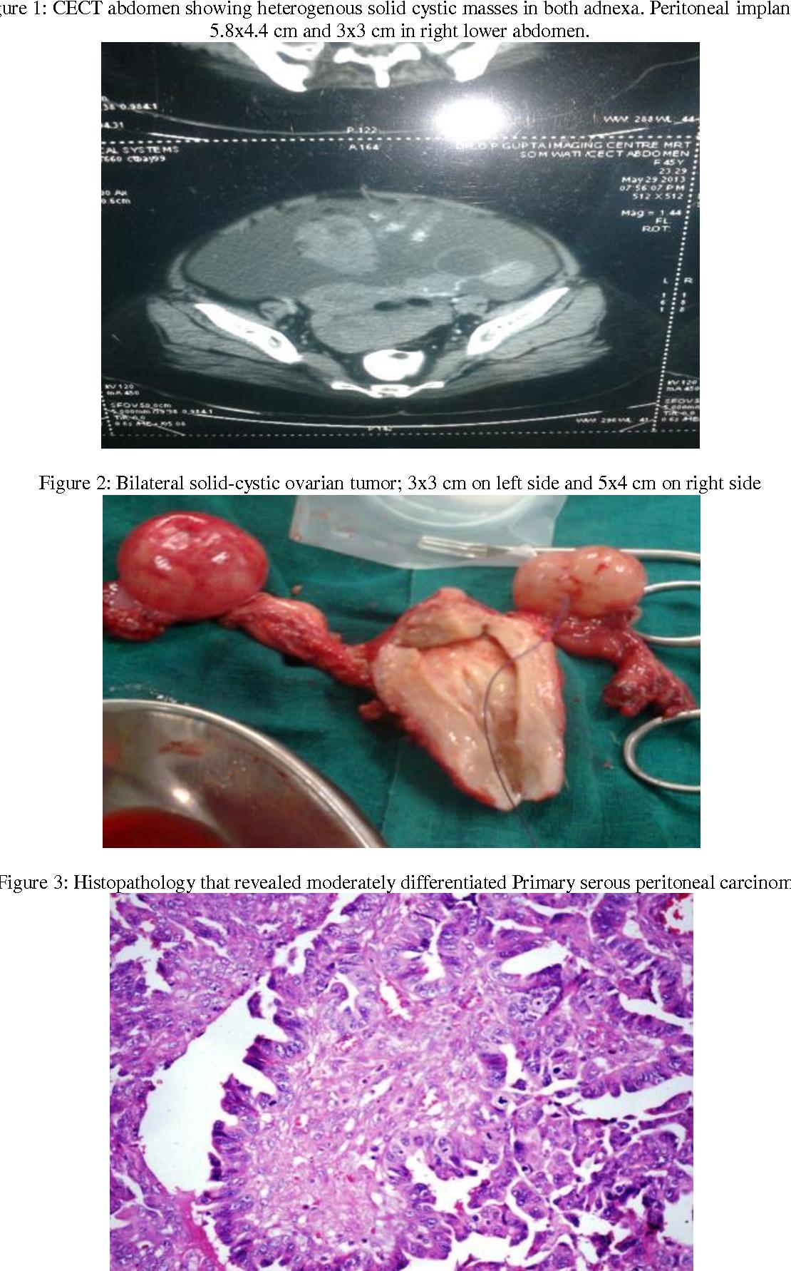 peritoneal cancer rare