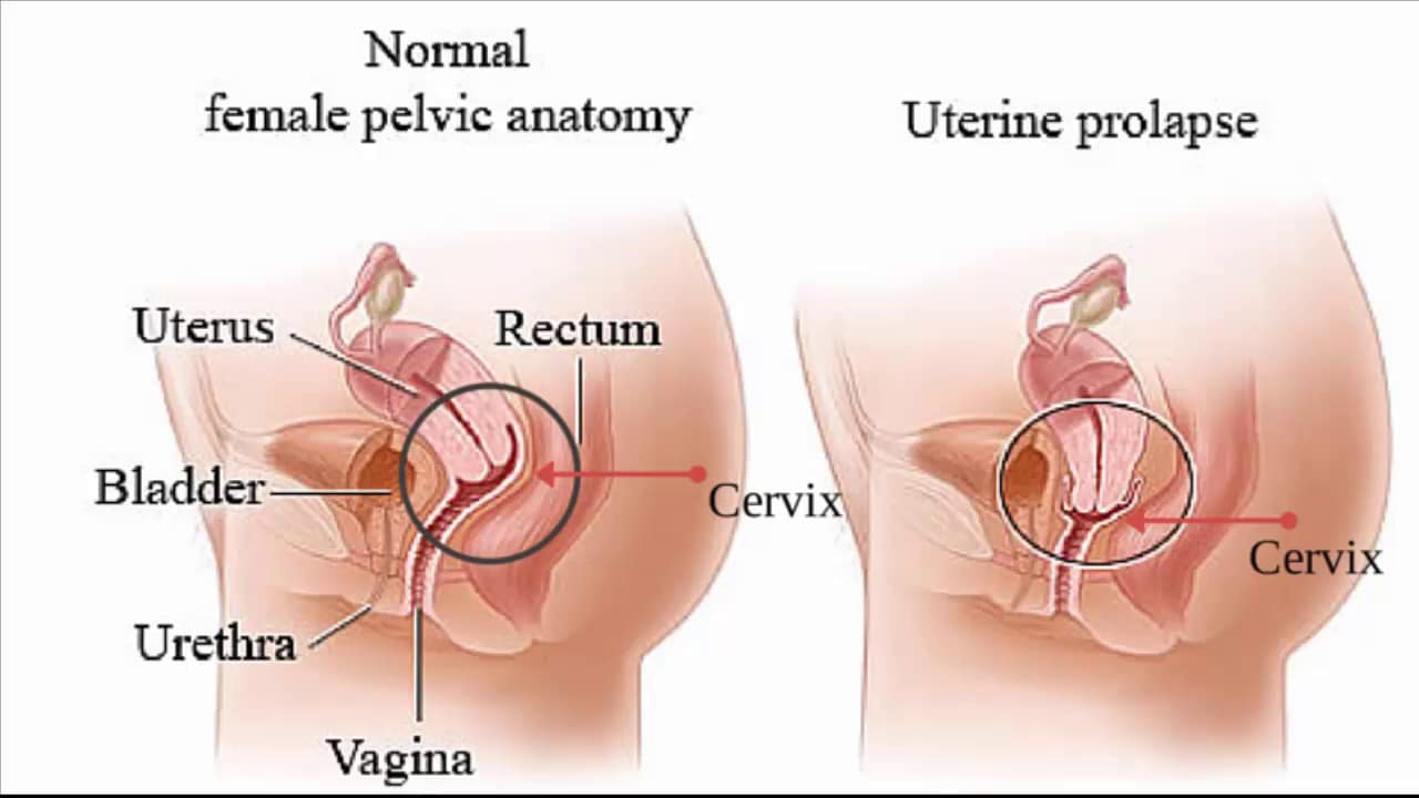 uterine cancer homeopathic treatment)