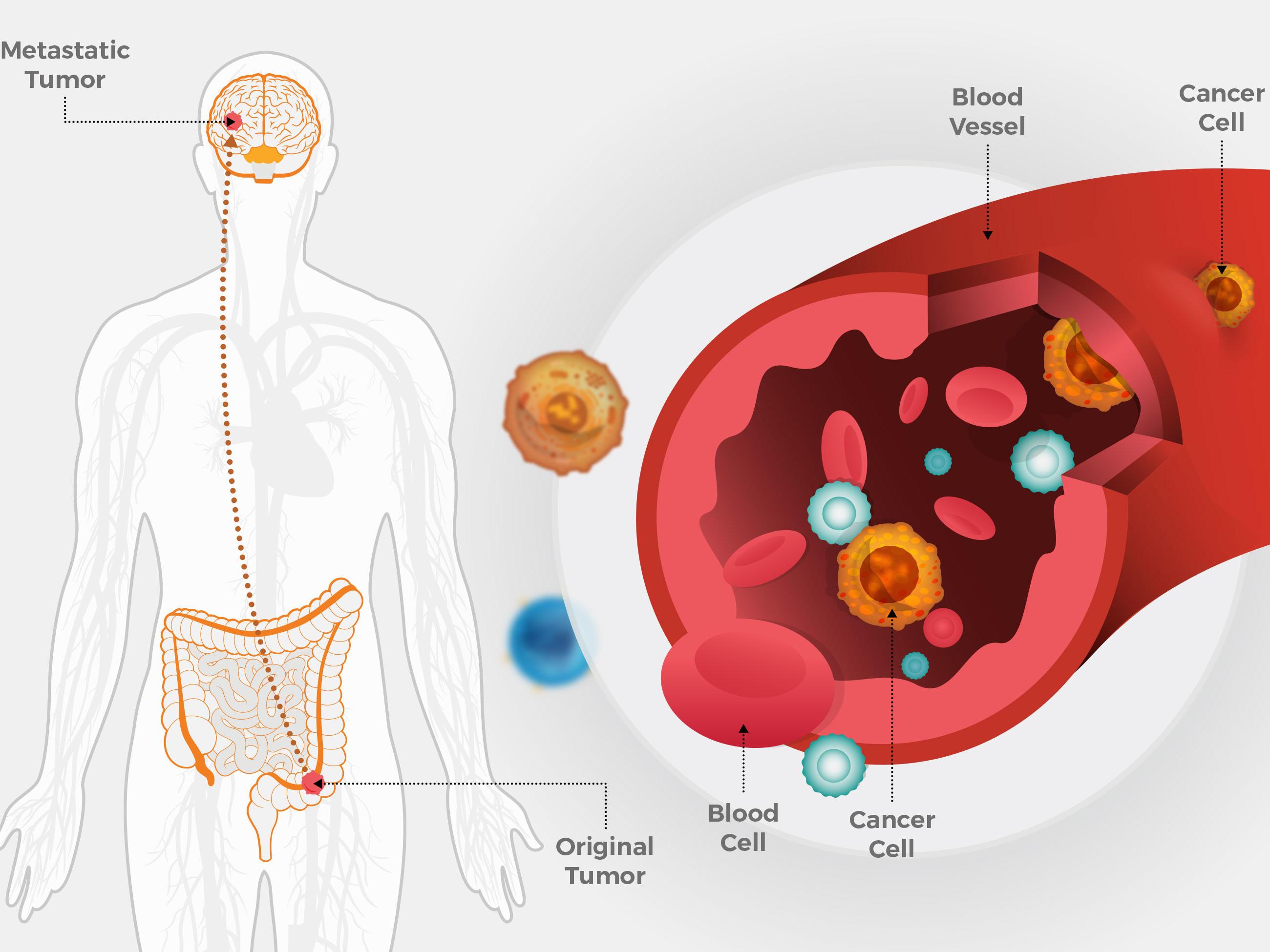 cancer que es metastasis