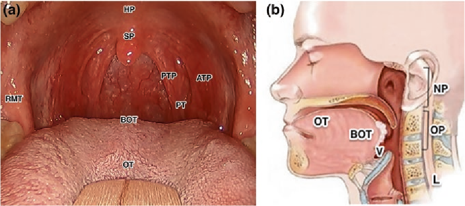 Head and Neck Cancer: Management and Reconstruction, ORL - kd-group.ro