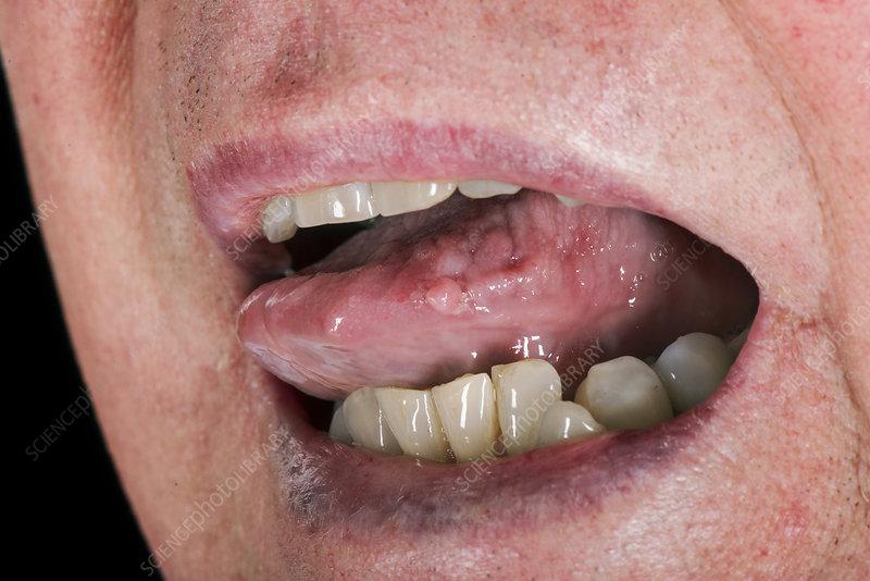 hpv wart in throat)