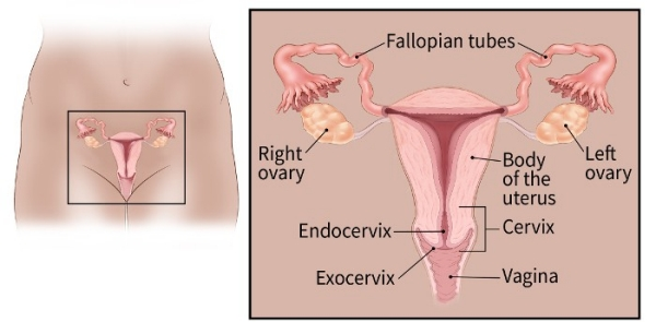 cervical cancer effects on the body)