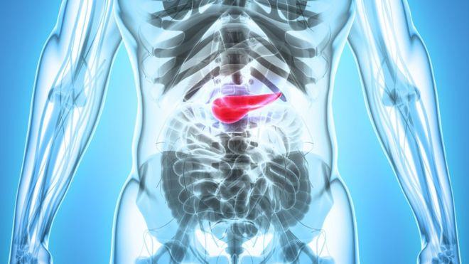 cancer de pancreas vida