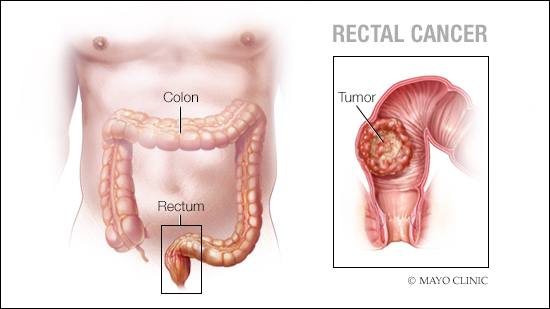 rectal cancer how do you get it