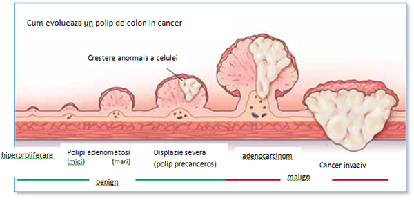 Polipi intestinul gros