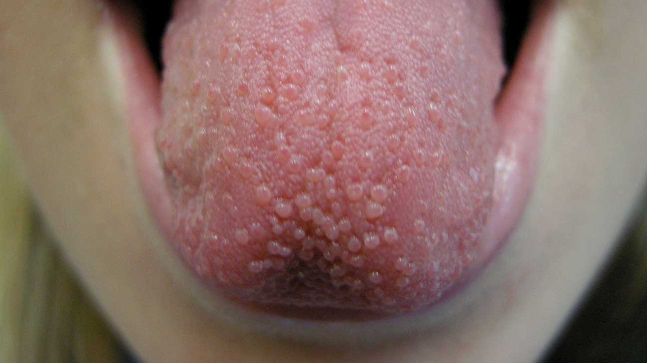 papillae under tongue
