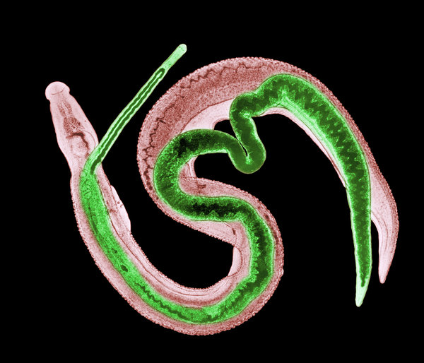 schistosomiasis a disease caused by a parasitic worm