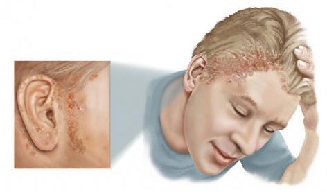 cancer scalp simptome