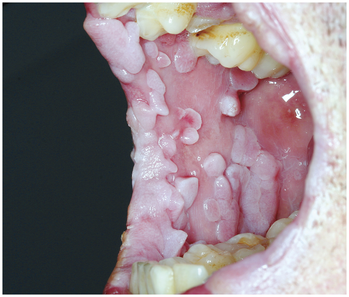 hpv mouth infection)