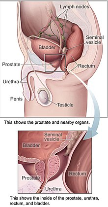 tumora maligna a prostatei