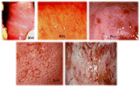 Cele 5 tipuri de cancer ginecologic