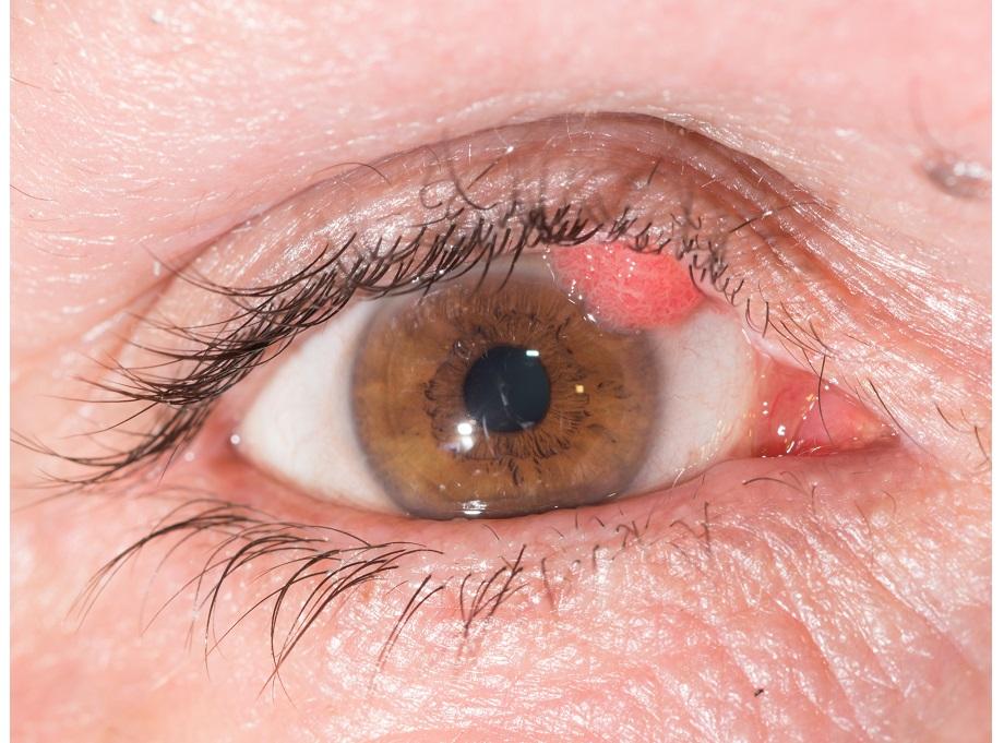 papilloma inside eyelid)