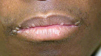 warts on mouth lips