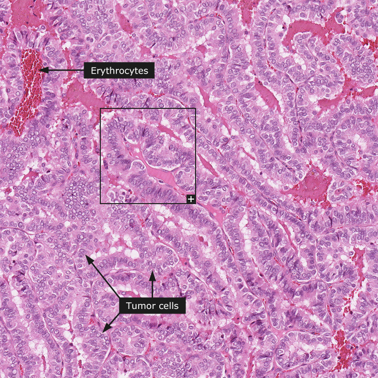 papillary thyroid cancer bladder