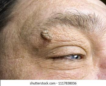 verrucous papilloma eyelid)