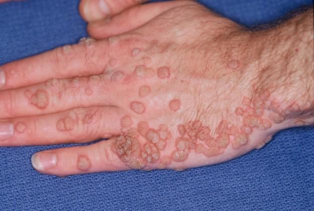 papillomavirus umano verruche
