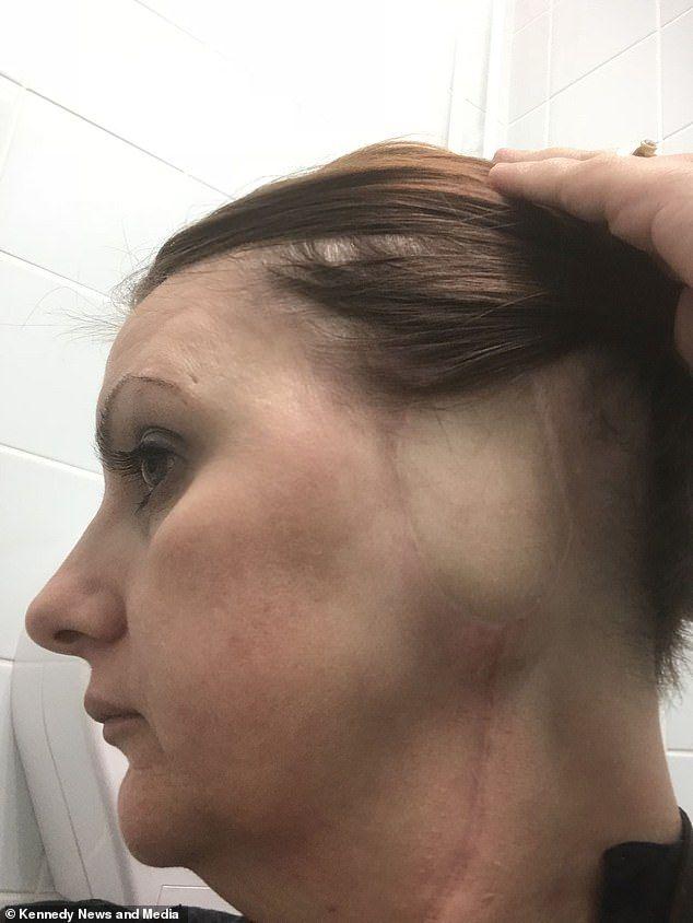 Rac urechi: Simptome, imagini, tratament, cauze și multe altele