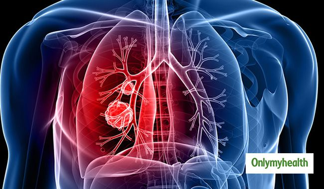 cancerul pulmonar diagnostic