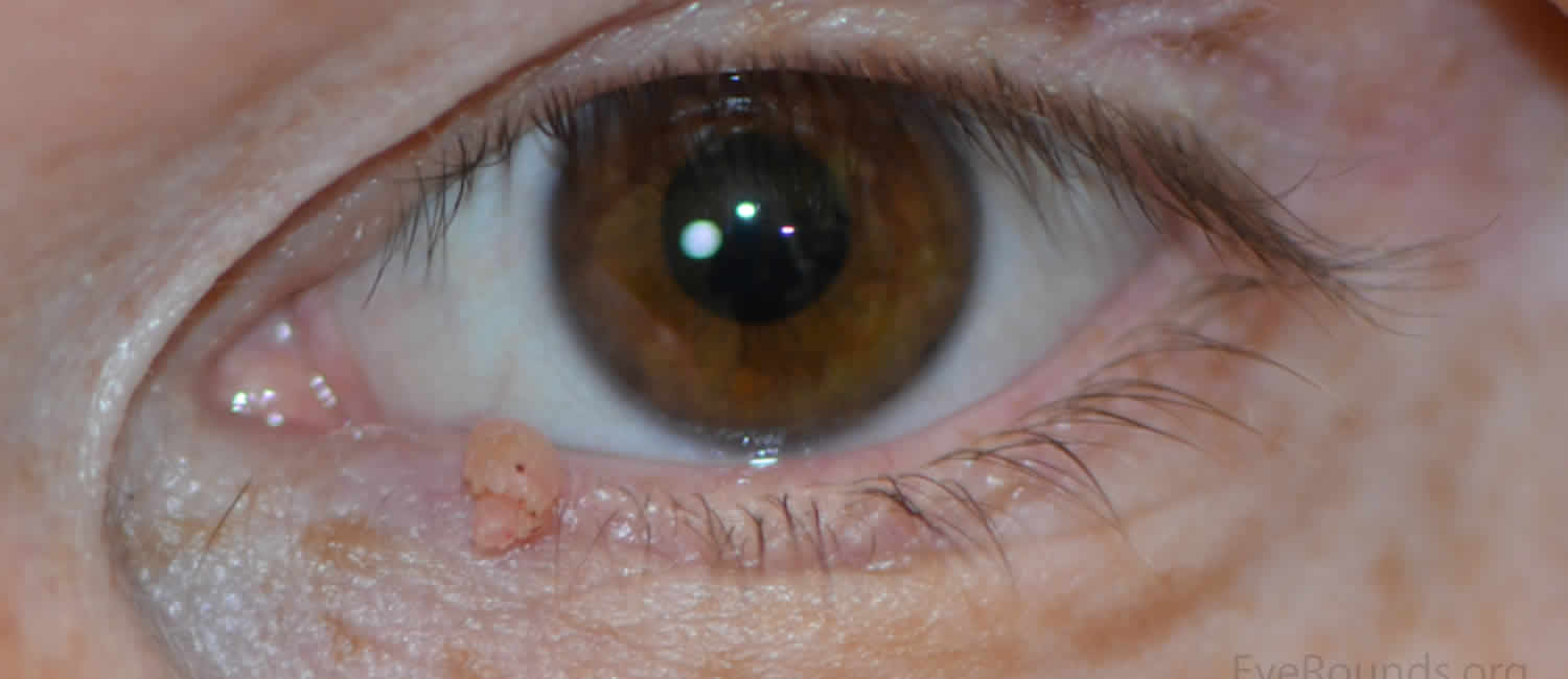 cell papilloma eyelid)