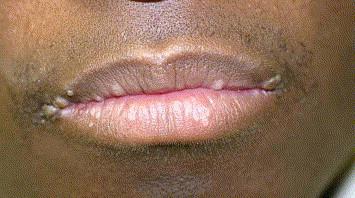 human papilloma virus lipstick