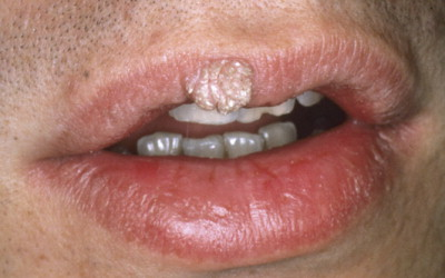 papilloma al labbro)