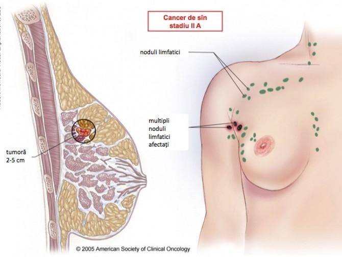 cancerul mamar se mosteneste cancer la picior copil