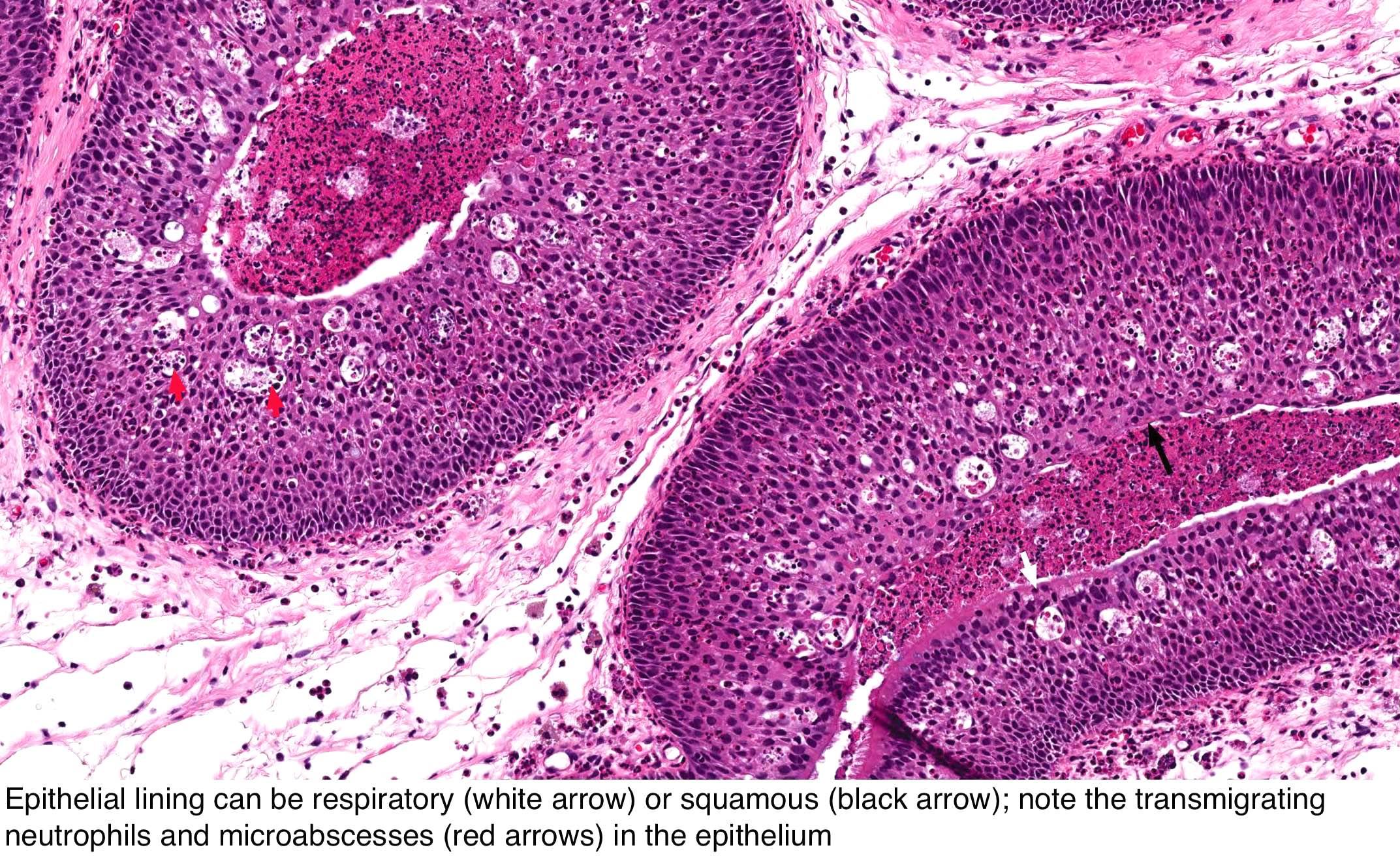 respiratory papillomatosis histology)