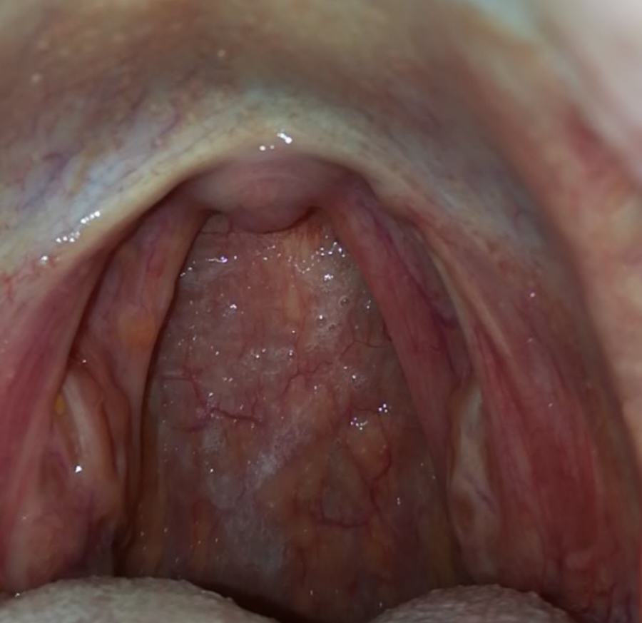 hpv on mouth treatment)