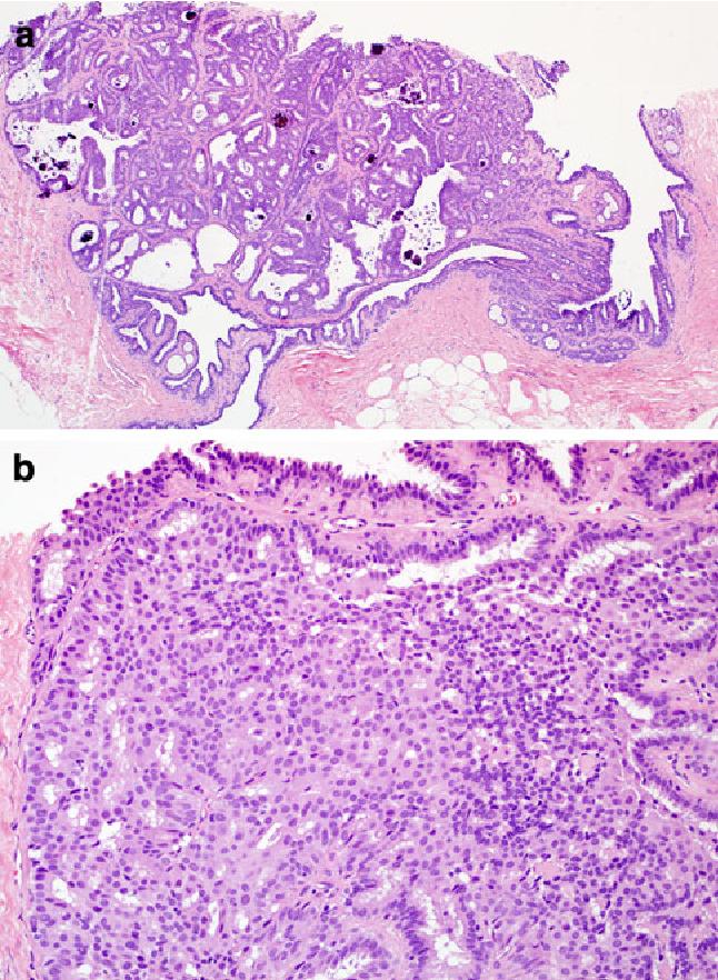 intraductal papilloma core biopsy)
