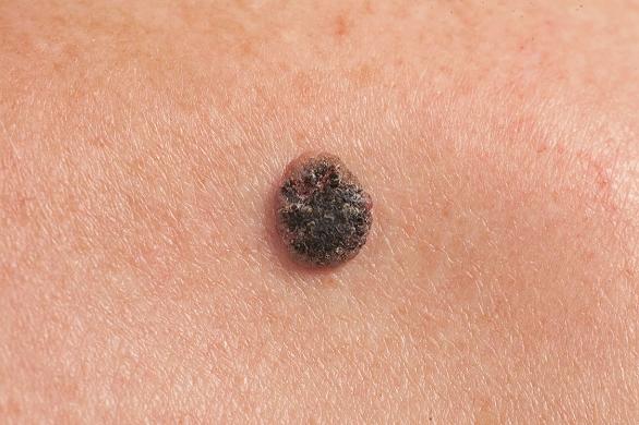 cancerul de piele cauze)