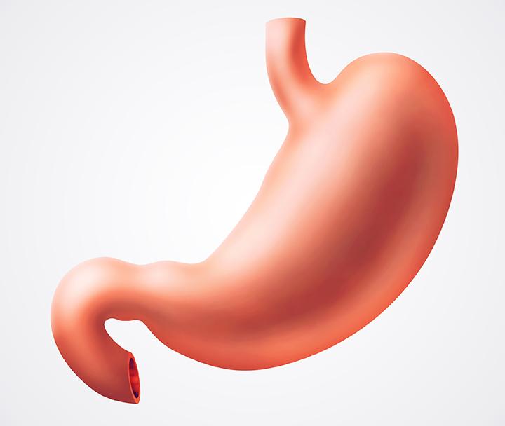 cancer gastric tipuri oxiuros estrenimiento
