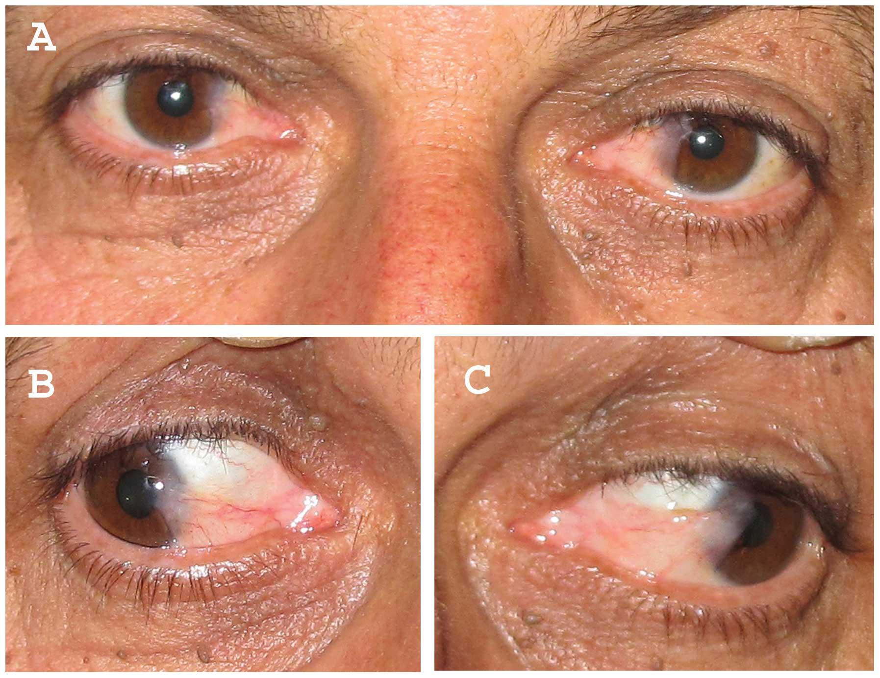 papilloma eye infection