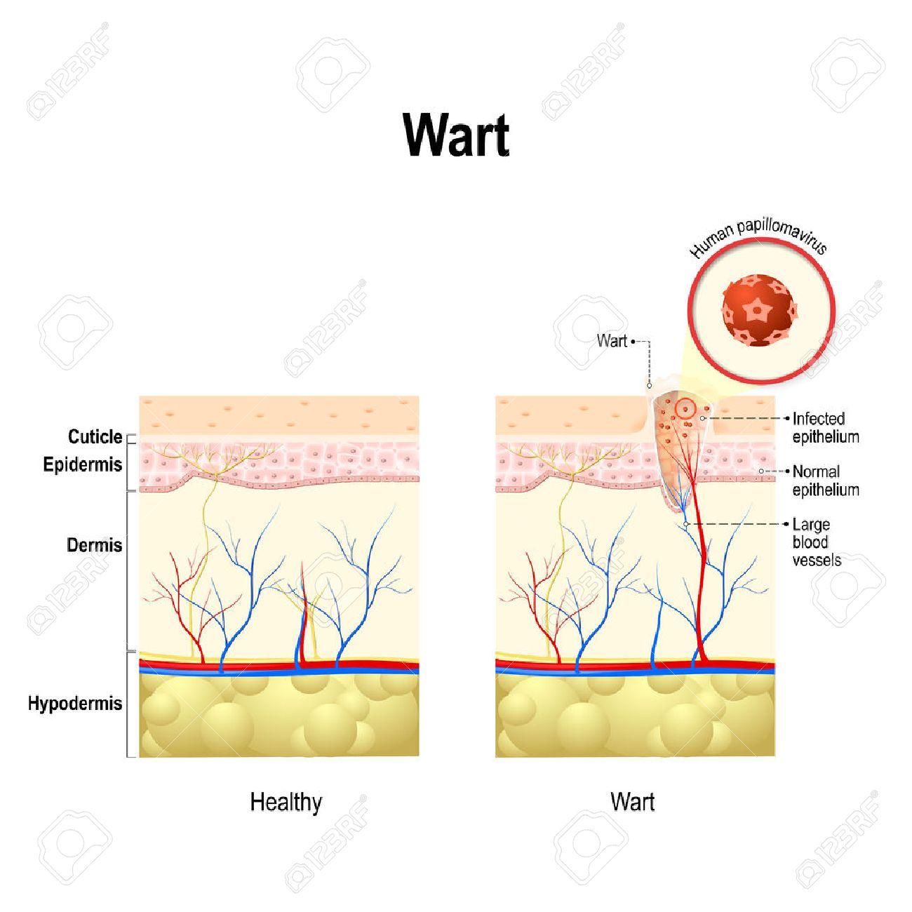 human papilloma virus causing warts)