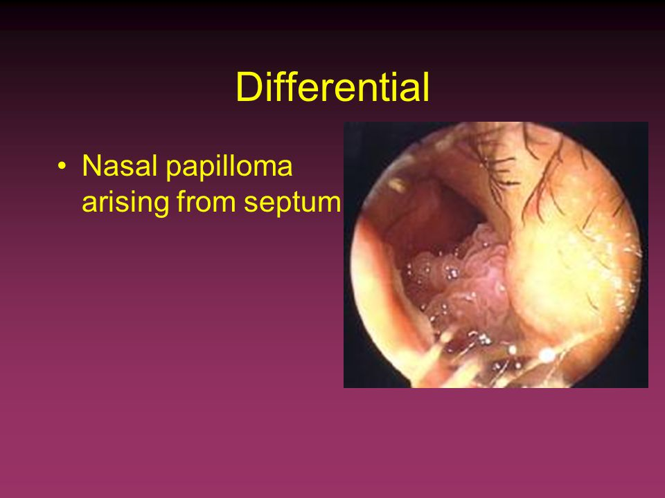 papilloma of the nasal septum hpv cancer of the throat pictures