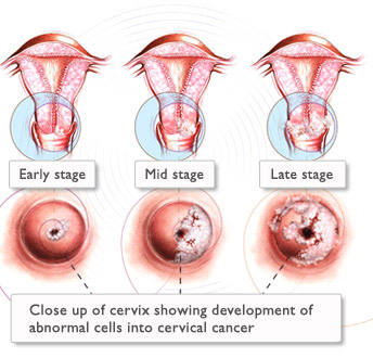 hpv sintomi perdite rectal cancer urinary incontinence