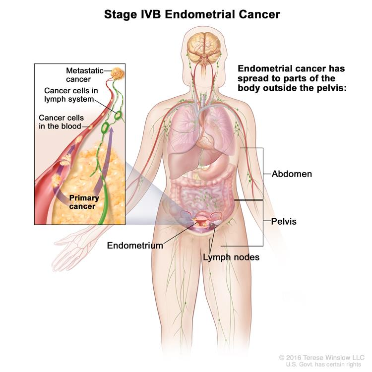 metastatic cancer lymph nodes symptoms)