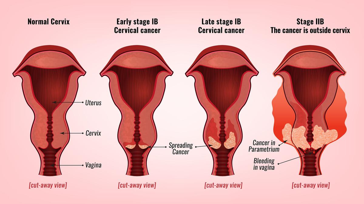 papiloma humano caracteristicas de la enfermedad hpv glottic cancer
