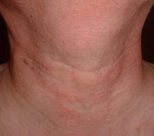 hpv symptoms on neck
