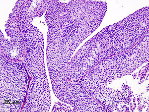 papillary urothelial neoplasm bladder