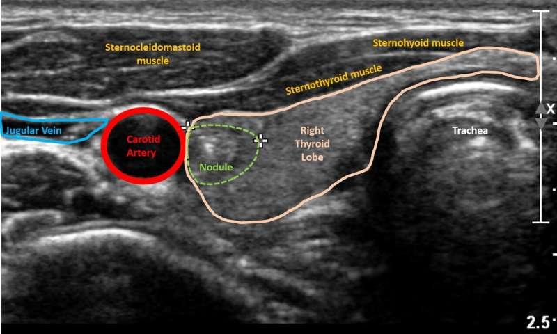 thyroid cancer benign nodules)