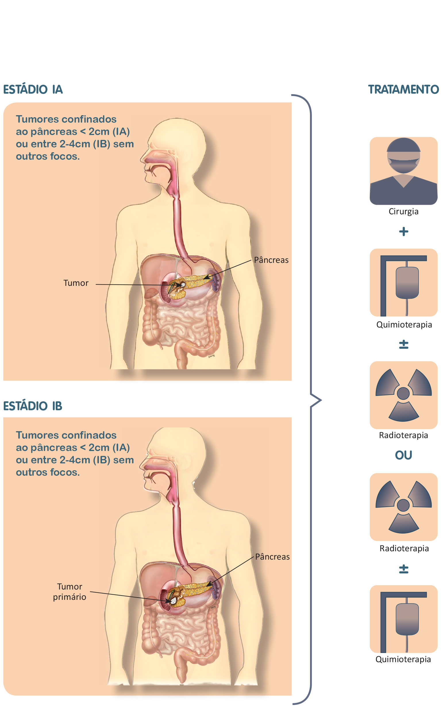 cancer de pancreas y peritoneo
