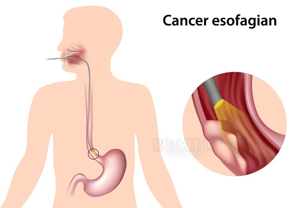 Cancer esofagian - Tot ce trebuie să ştii   Cancer