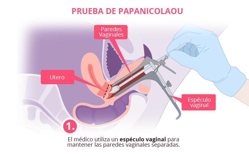 virus papiloma humano prueba)