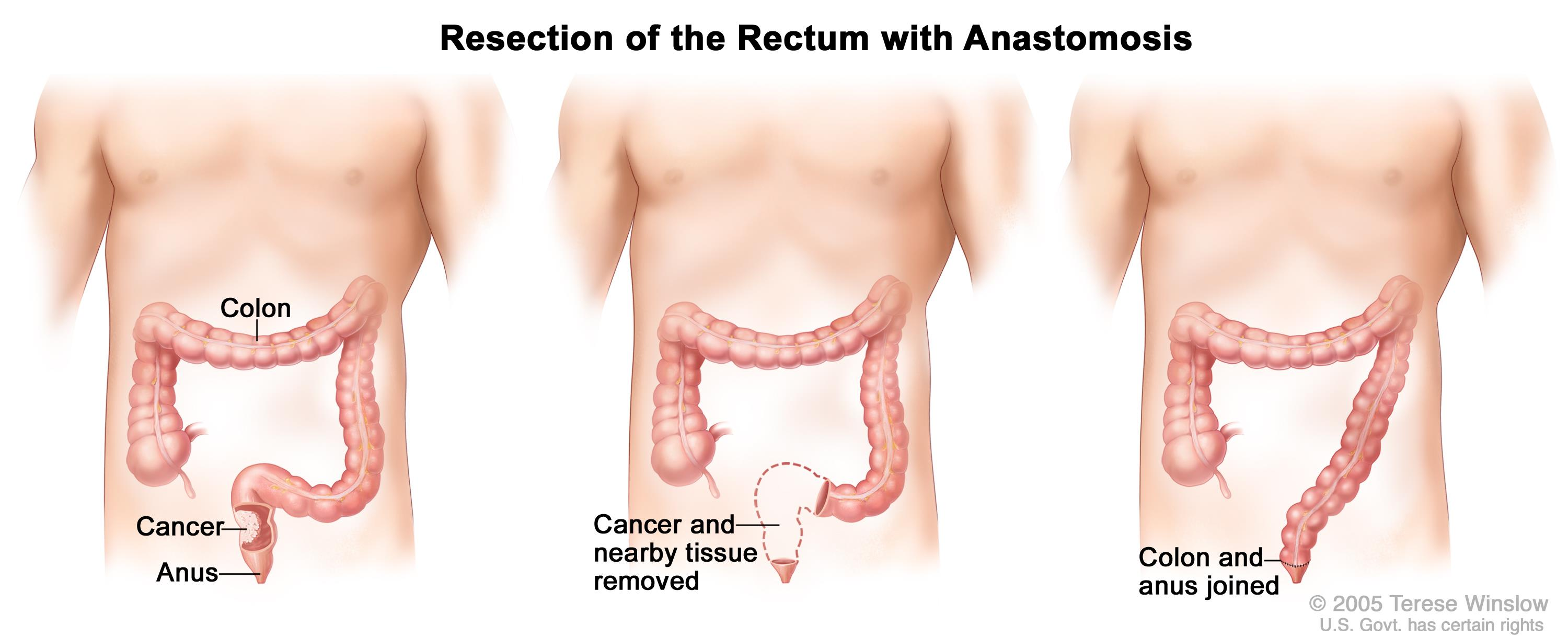 rectosigmoid cancer treatment anemie ce este