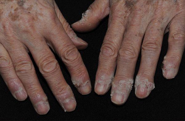 Cancerul de prostata: Simptome, Cauze, Tratament - prostatita.adonisfarm.ro