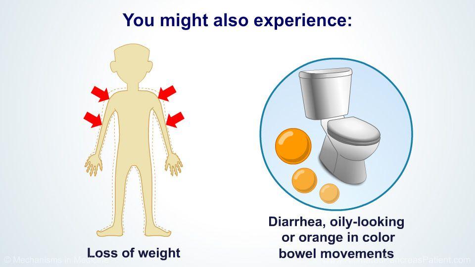 Cancer de pancreas: factori de risc, simptome şi analize necesare pentru diagnostic | kd-group.ro